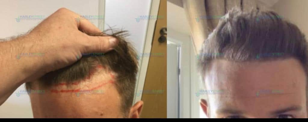 Harley Street Client receding hairline before and after