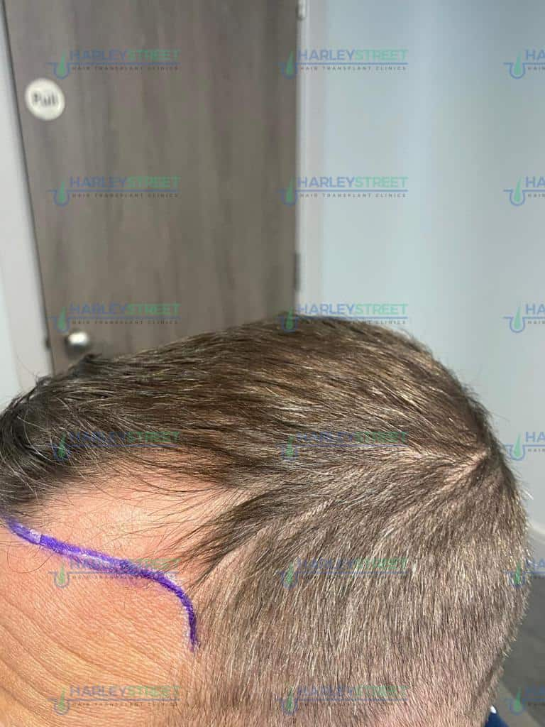 Harley Street Hair Transplant Client before with receding hairline