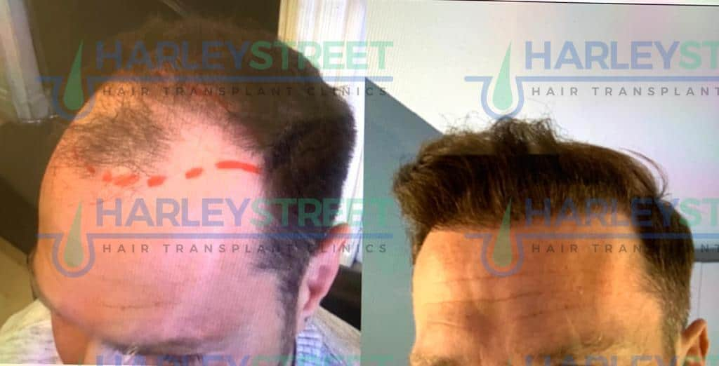 Harley Street Hair Transplant Clinic London Before and after pic of client