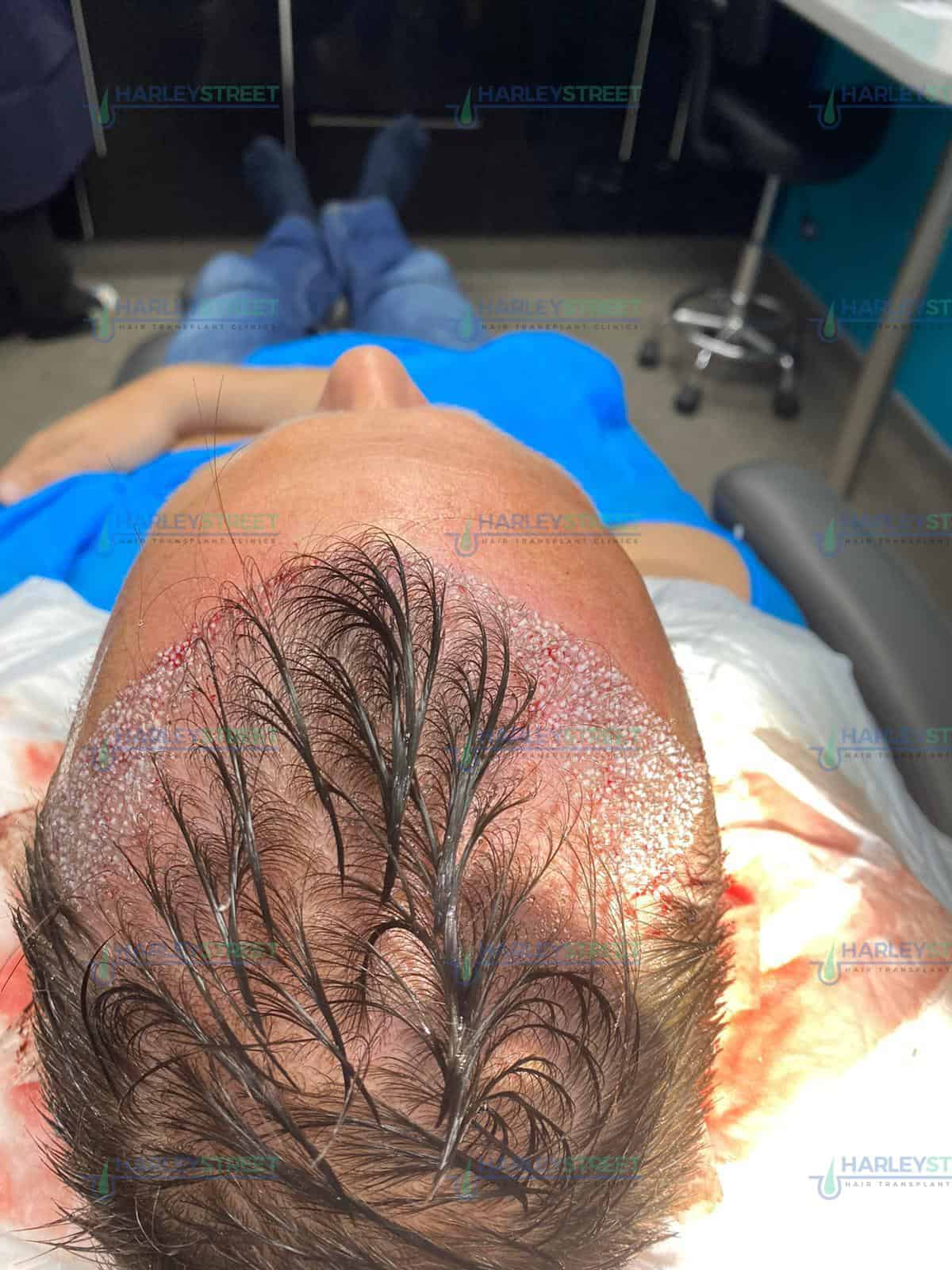 Harley Street Hair Transplant during procedure fue