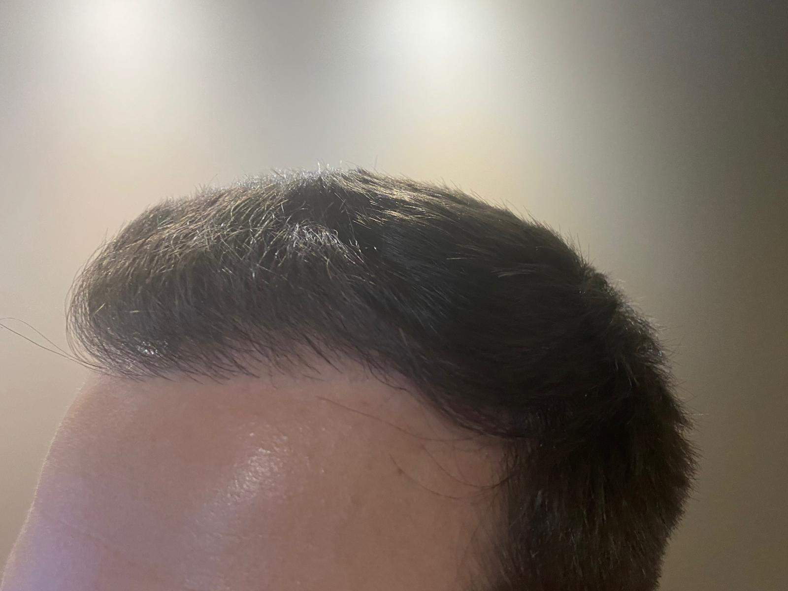 Harley Street hair transplant post fue procedure with hair growth