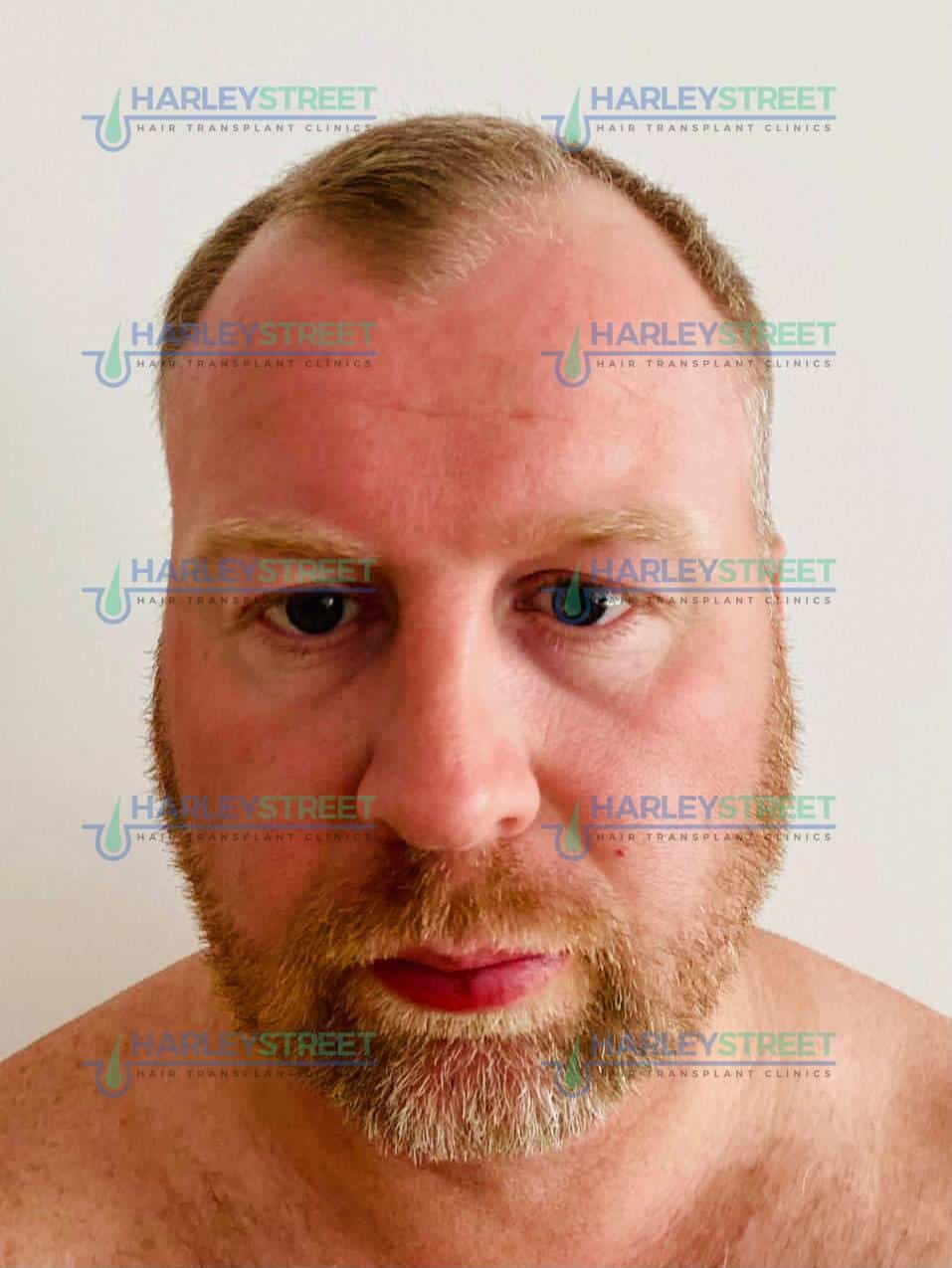 HarleyStreet Hair Transplant Clinic London Client before (1)